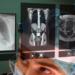 Proyecto de realidades aumentada y virtual en una cirugía real en el Hospital Gregorio Marañón