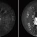Tecnología Smart IR para garantizar la nitidez de las imágenes de las cámaras de seguridad